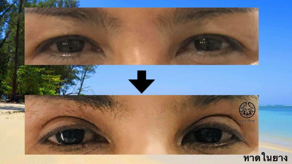 beauty eyelids