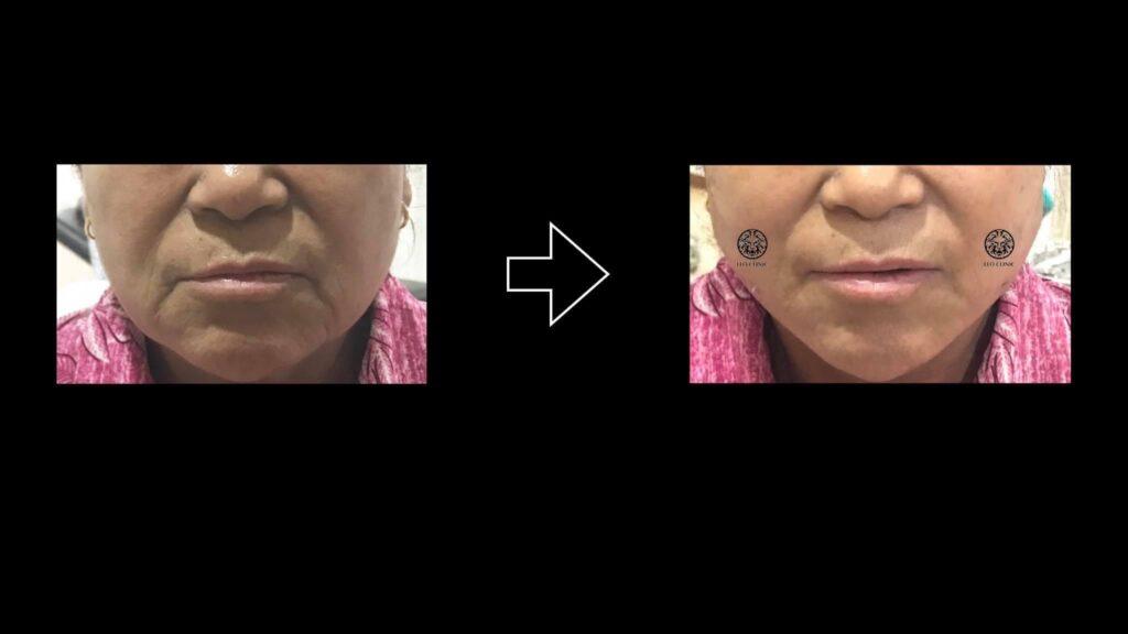 face lock