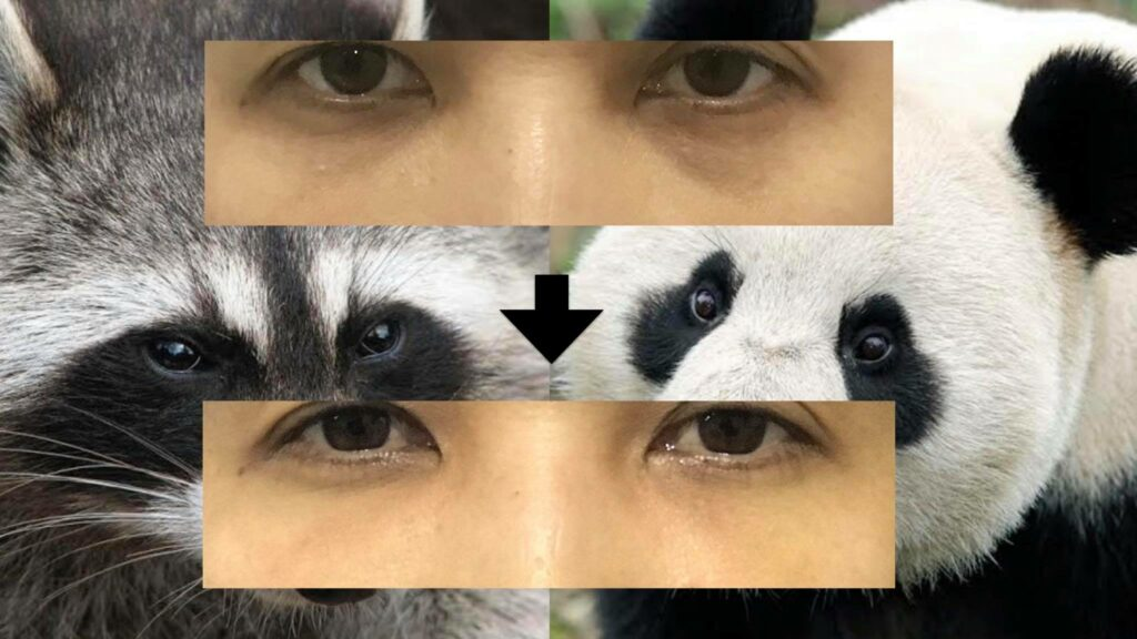 dark circle eye