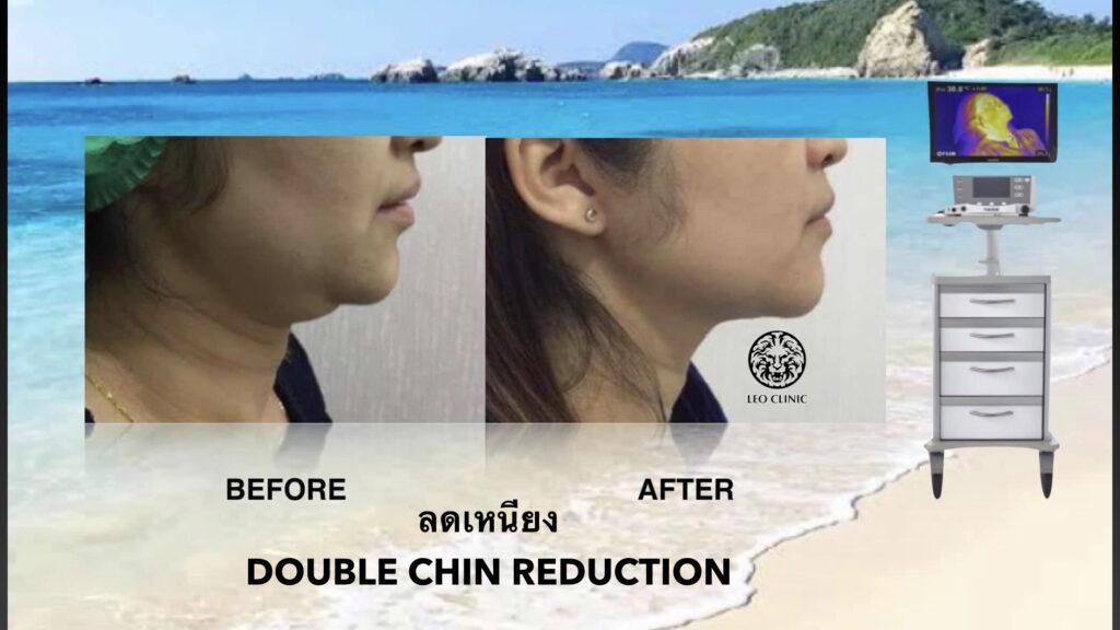 lower face tightening