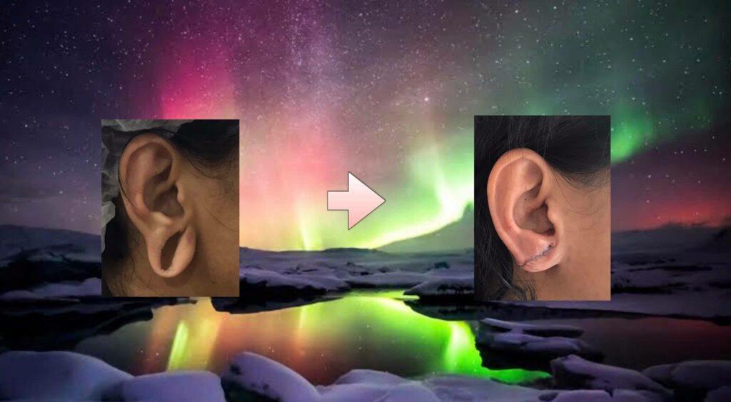 earlobe correction