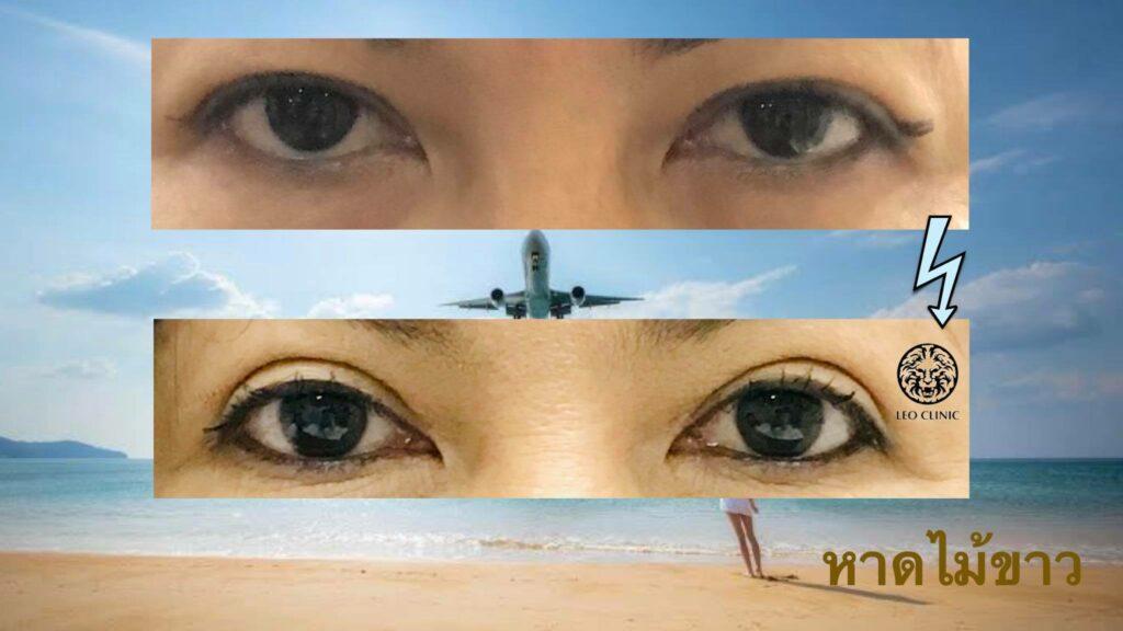 cosmetic eyelids surgery