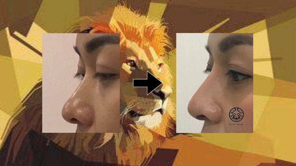 nose augmentation