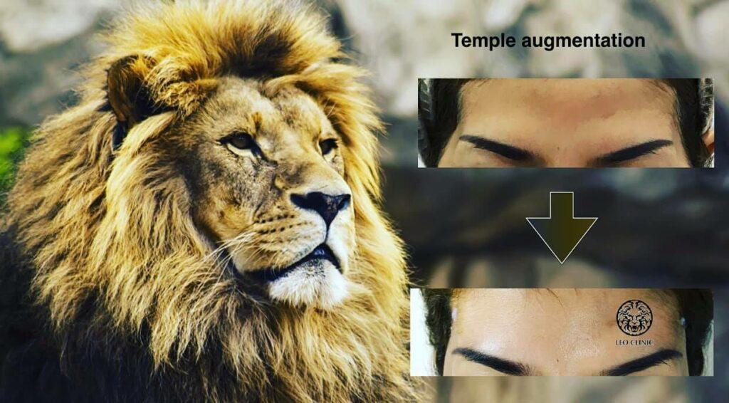 temple reshape